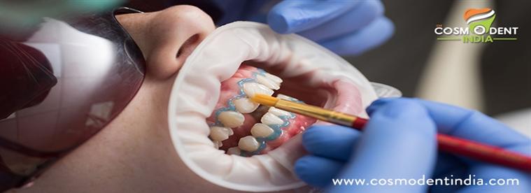 10-avantages-de-traitement invisalign