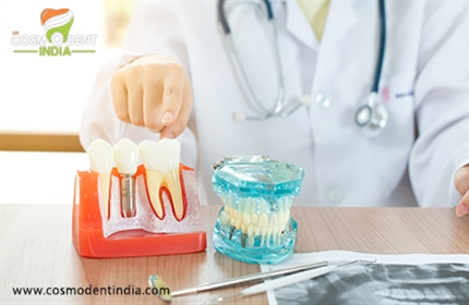 all-you-need-to-now-about-all-on-4-dental-implants