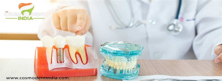 كل ما تحتاج إلى معرفته عن زراعة الأسنان