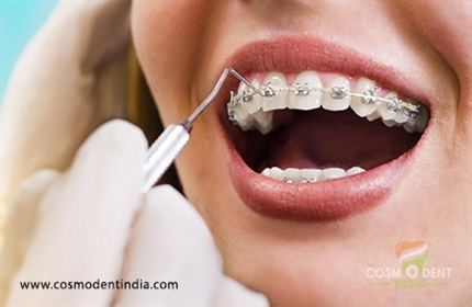 un traitement en orthodontie