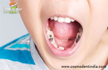 children-teeth-cavity