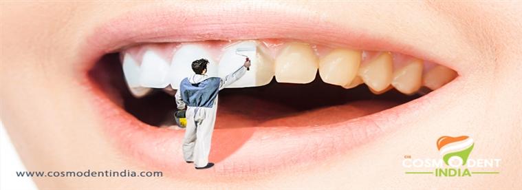 cosmética-dentista-en-gurgaon