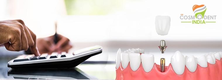 تكلفة زرع الأسنان في جورجاون