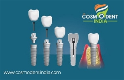 dental-implant-preparation-stages-results
