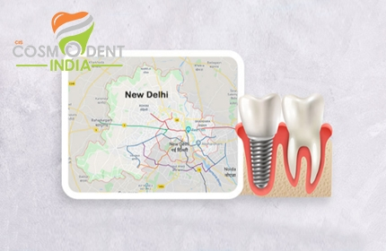 best-dental-implant-treatment-center-in-delhi