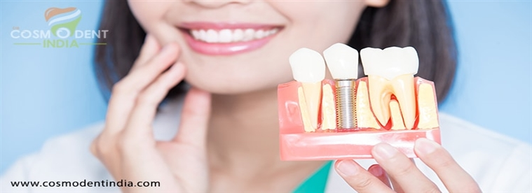 implants dentaires solution à vos dents manquantes