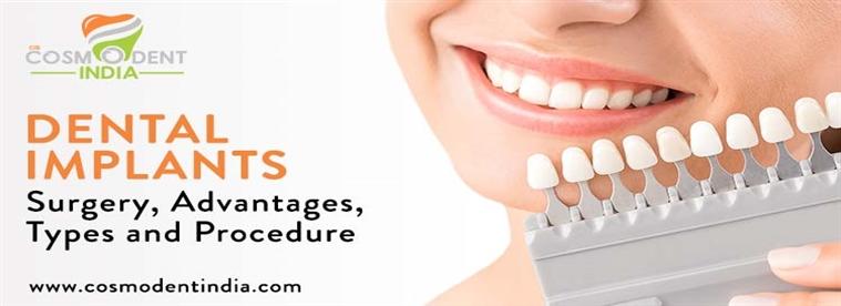 زراعة الأسنان - مزاياها - أنواعها - إجراءاتها