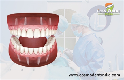 remplacement d'implant complet