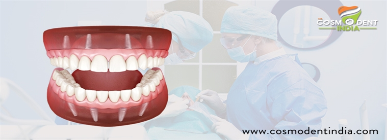 full-tooth-implant-replacement