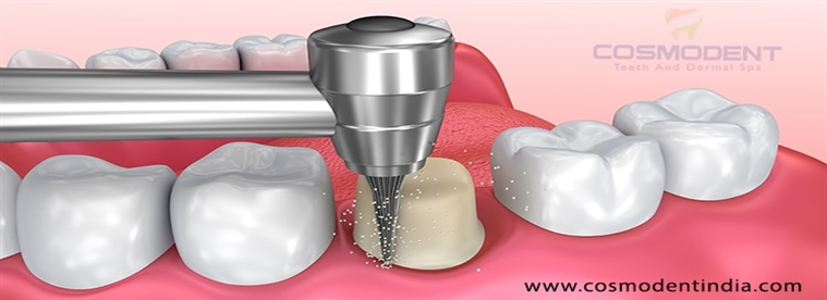 get-the-best-dental-implants-in-india-by-the-best-doctor