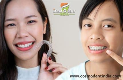 how-is-invisalign-better-than-braces