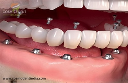 how-much-does-it-for-full-dental-implants
