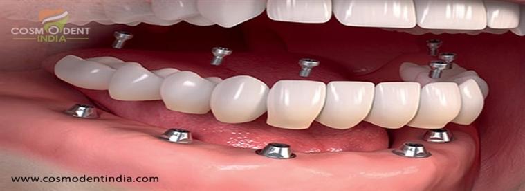 ¿Cuánto cuesta el costo de los implantes dentales completos?