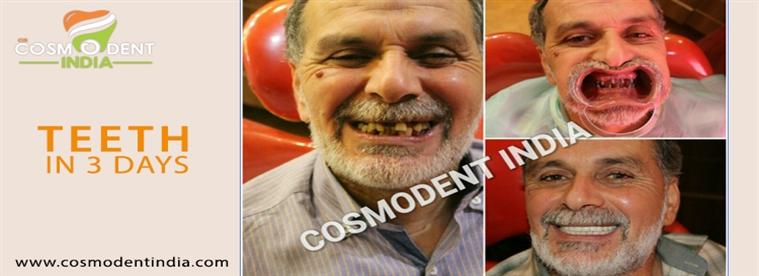 implante de dientes inmediatos