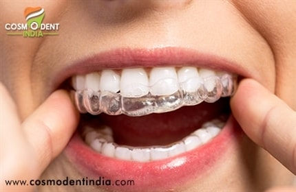 invisalign-braces-in-インド治療
