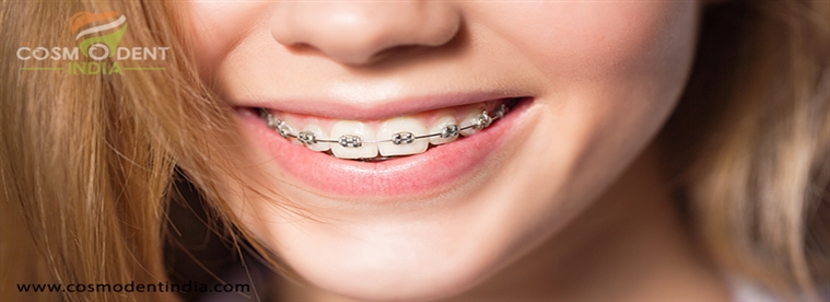 invisalign-dents-accolades