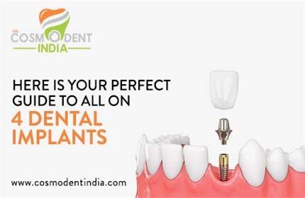 guía-perfecta-para-todos-en-4-implantes-dentales