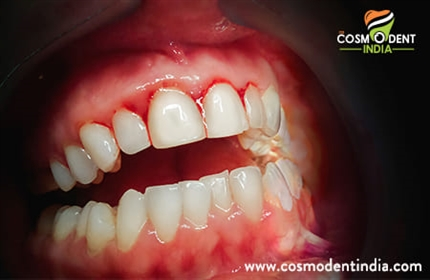 periodontitis-treatments