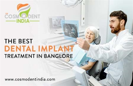 the-best-dental-implante-treatment-in-bangalore