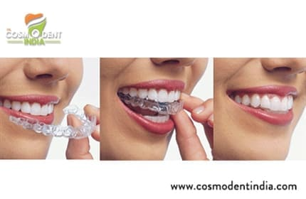 the-invisalign-treatment-process