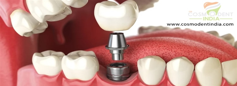 using-implants-to-stabilize-dentures