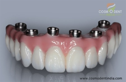 What-is-a-dental-implant-bridge
