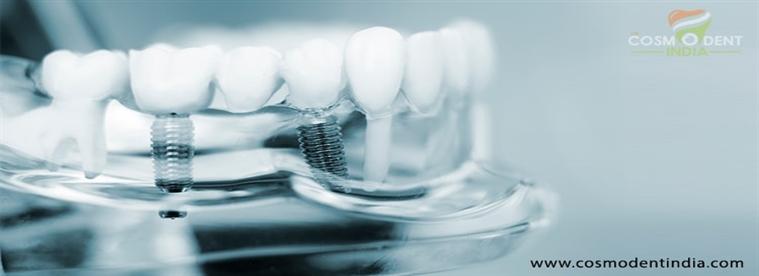 ما إلى النظر قبل الجارية للجميع على اساس 4-الأسنان-زراعة