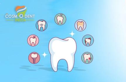 mejores tratamientos dentales en Bangalore