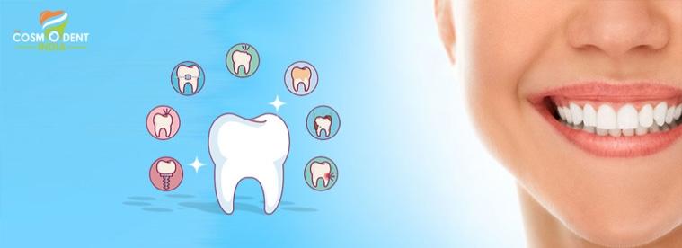 أفضل علاجات الأسنان في بنغالور