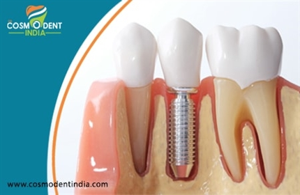zygoma-implants-teeth-replacement-despite-poor-bone-quality