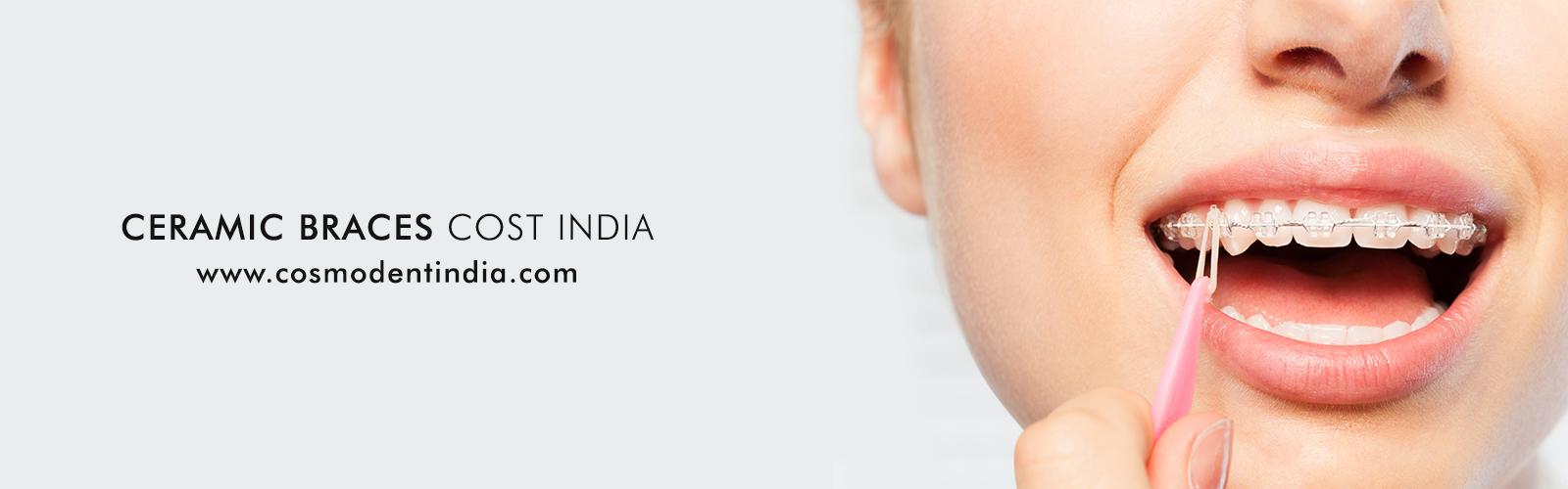 Керамическая брекет-экономически Индии