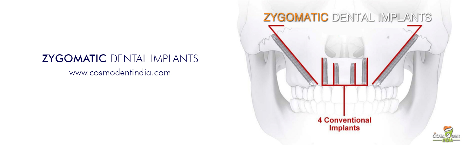 implants zygomatiques en Inde