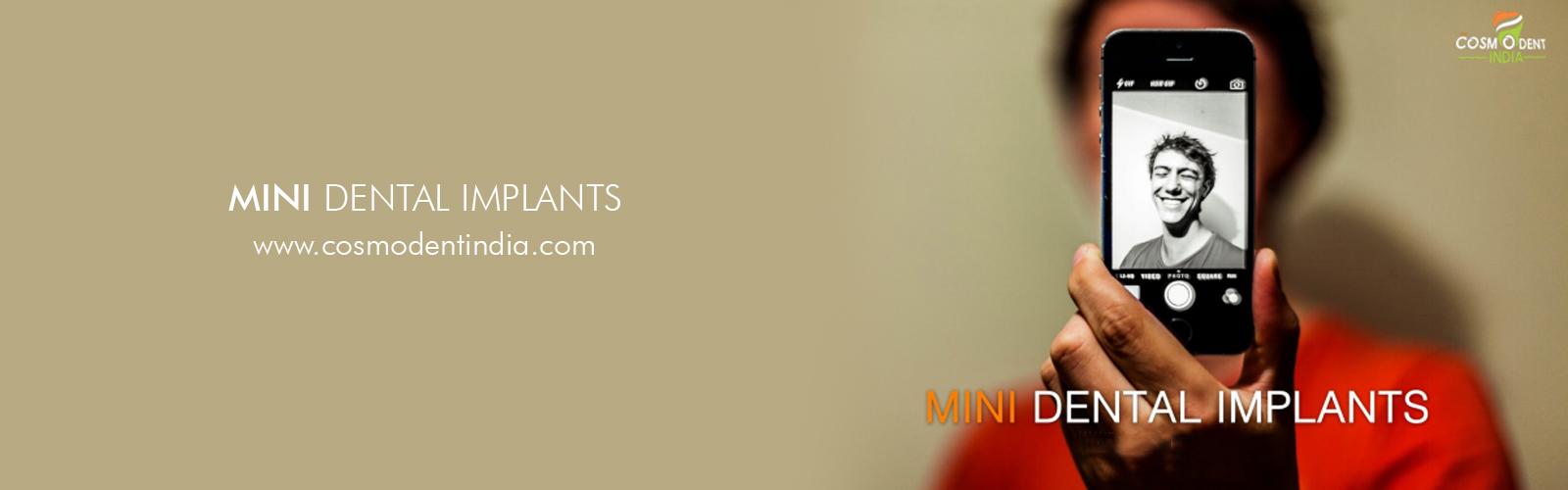 implants à une seule dent-gurgaon-inde