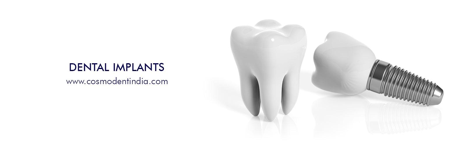 牙科植入物 - 右 - 在 - 你的角