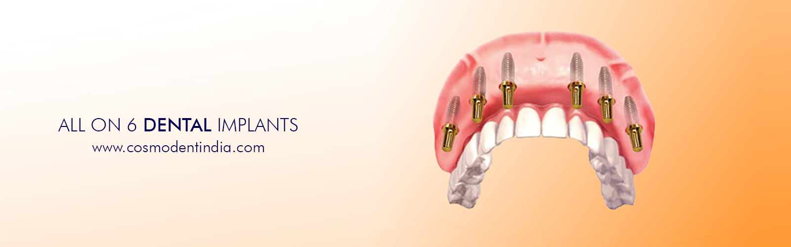 all-on-6-dental-implants-india