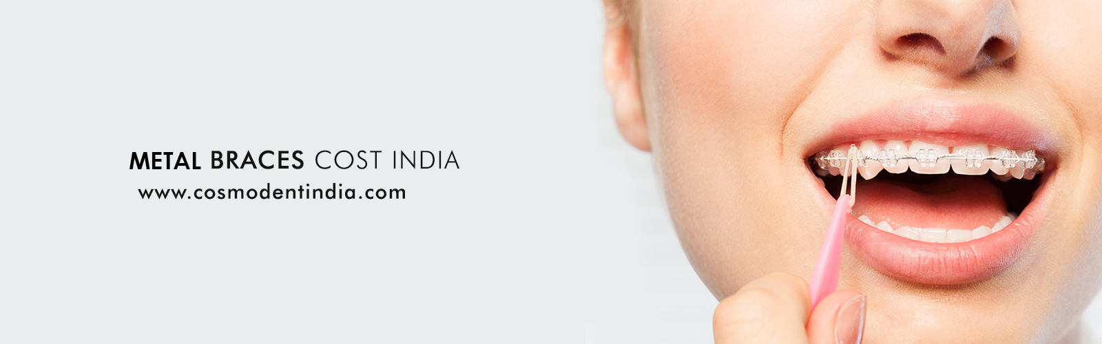 metal-braces-cost-in-india