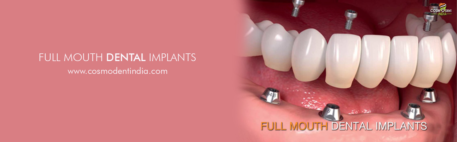 Full Mouth Dental Implants Cost In India Cosmodent India