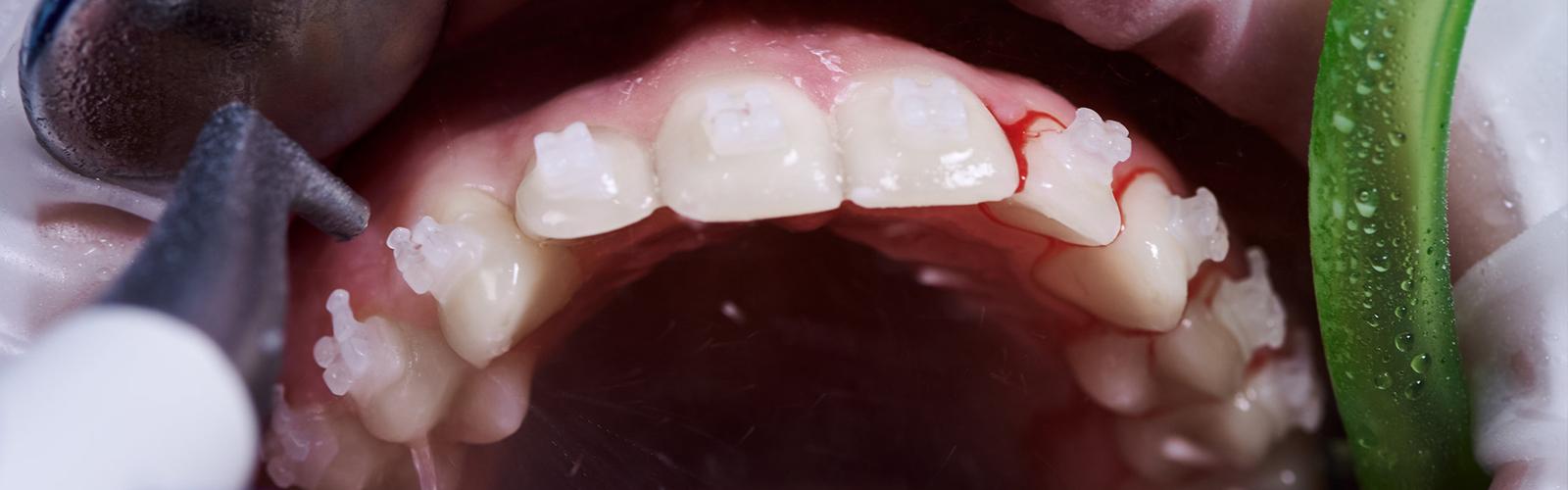 periodoncista-en-gurgaon-india