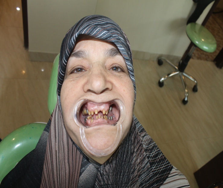 During Treatment- Dental Care