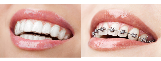Invisalign-braces-cost-in-india