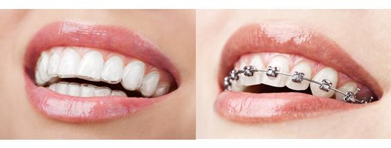 Invisalign Teeth Braces Cost in India | Teeth Brace Cost