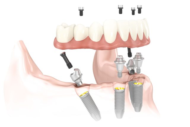 all-on-4-dental-impants-gurgaon