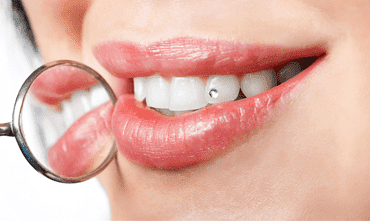 dental-braces-in-india