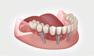 dental-crown-in-india